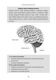 100 otázek a odpovědí, jak se uzdravit po mozkové mrtvici