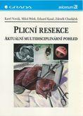 Plicní resekce - aktuální multidisciplinární pohled